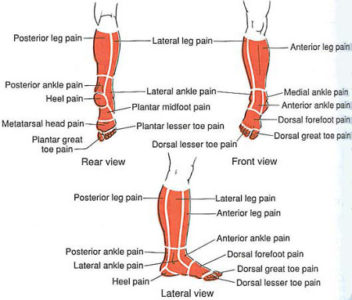 Illustration of Pain In The Calves And Ankles?