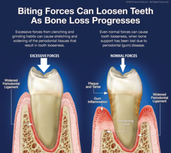 Illustration of Loose Teeth Due To Periodontitis?