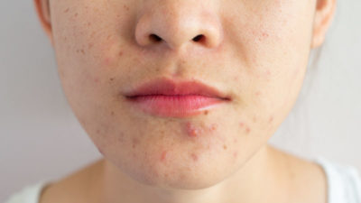 Illustration of Using Soap Alternately Can Cause Acne?