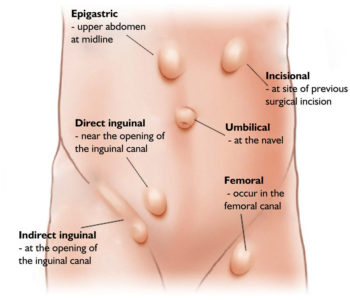 Illustration of How To Deal With A Hernia?