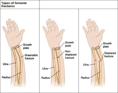 Illustration of Crooked And Small Hands After Fracture?