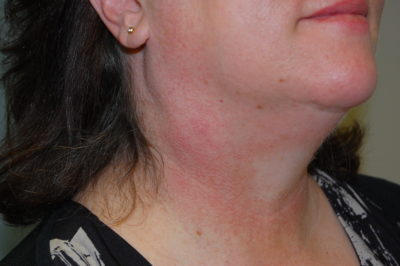 Illustration of Lump On The Left Side Of The Neck And Getting Bigger?