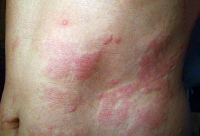 Illustration of Treatment Of Itchy, Red And Swollen Skin?