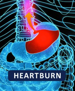 Illustration of Heartburn Accompanied By A Pounding Heart And A Lump In The Throat?