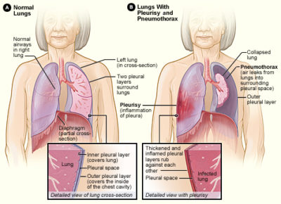 Illustration of Left Chest Pain When Taking Deep Breaths Accompanied By Coughing?