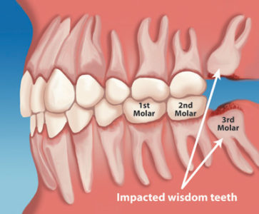 Illustration of Should The Wisdom Teeth Be Removed?