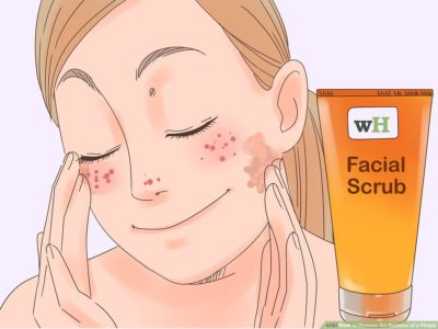 Illustration of Overcoming Inflamed Acne For 3 Days?