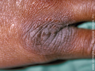 Illustration of Skin That Feels Itchy And Thickened With Spots?