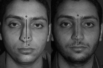 Illustration of Is Crooked Nose Surgery Necessary?