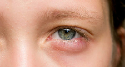 Illustration of It's Been 3 Days Since The Eyes Are Red, Swollen With White Spots On The Upper And Side Lenses?