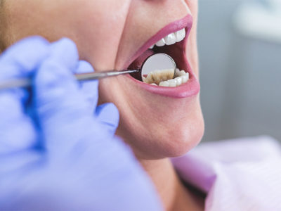 Illustration of Causes Of Tooth Pain When Eating?