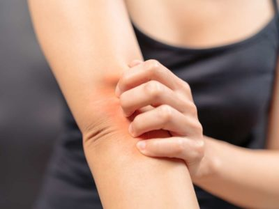 Illustration of Itchy Skin After Consumption Of Clean Blood Medication During Menstruation?