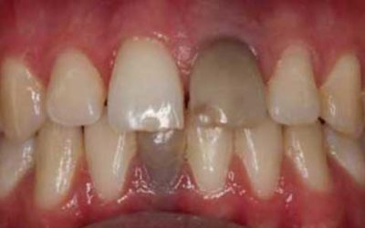 Illustration of The Cause Of Teeth Blackish Before Root Canal Treatment?