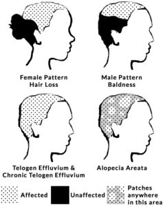 Illustration of The Effect Of Stress On Baldness?
