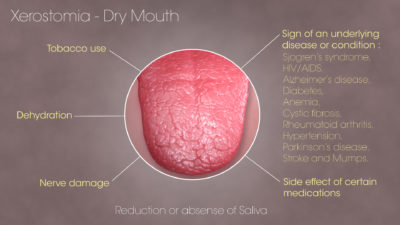 Illustration of Dry Mouth And Sore Tongue When Taking Medication For Mumps?