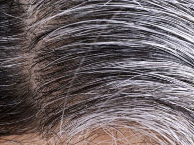 Illustration of White Hair Appears After Recovering From Illness?