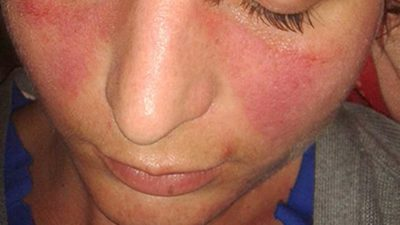 Illustration of Red Rash On The Face Accompanied By Burning And Itching?
