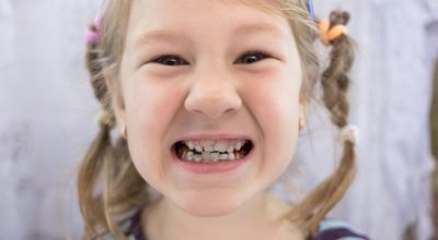 Illustration of The Solution To Overcome The Teeth Of A 6 Year Old Child Is Penetrating The Gums?