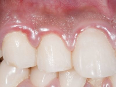 Illustration of The Cause Of The Gums Is Swollen And Painful After Consuming Diclofenac Potassium Methylprednisolone?