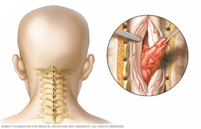 Illustration of Associated Lump In The Neck With Difficulty Walking?