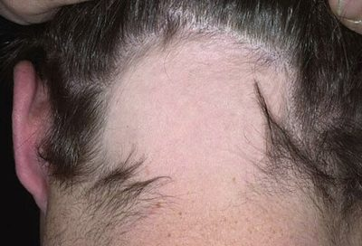 Illustration of The Cause Of Hair Suddenly Pitting?