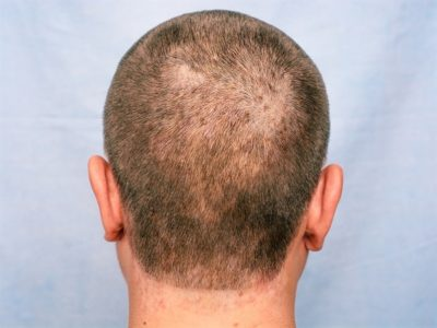 Illustration of Dry Hair, Flaking Red Face, HIV?