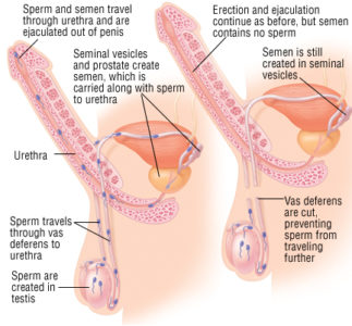Illustration of Pain In The Testicles Before And After Ejaculation?