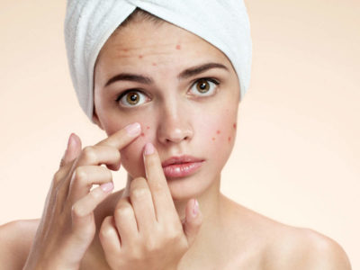 Illustration of Overcoming Small Pimples On The Cheeks In Adolescents Aged 13 Years?