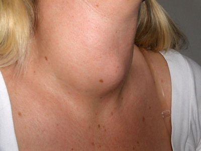 Illustration of Lumps On The Neck And Shoulders Accompanied By Swelling In Almost All Parts Of The Body?