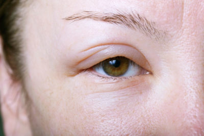 Illustration of The Lower Eyelids Are Getting Swollen After Giving The Drug?