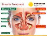 Treatment Of Sinusitis In The Nose?
