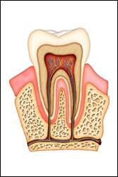 Illustration of The Danger Of Leaving The Root Of The Tooth When Pulling A Tooth?