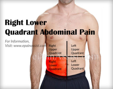 Illustration of Causes Of Abdominal Pain In The Lower Right?