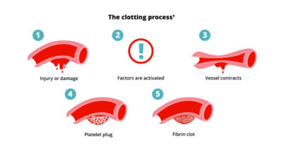 Illustration of Causes Of Blood Clots When Donating Blood?