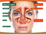 Can Nasal Congestion Be Cured?