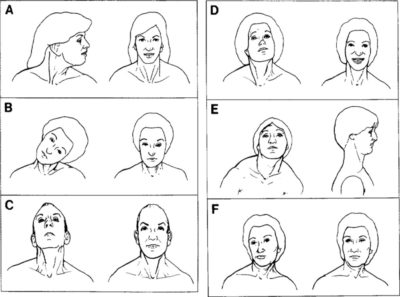 Illustration of Can Torticollis Sufferers Be Cured?