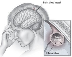 Illustration of The Cause Of The Headache Doesn't Go Away?