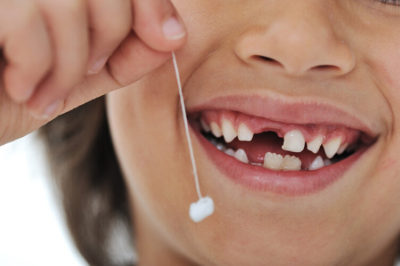 Illustration of How To Deal With Baby Teeth That Have Not Fallen Out?