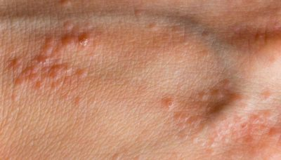 Illustration of Lumps Like Pimples On The Hands Since 2 Months Ago?