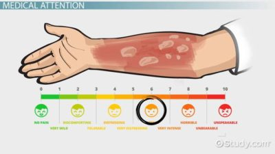 Illustration of How To Treat Burns?