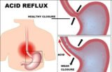 The Right Treatment For Typhus, Anemia And Heartburn?