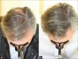 Is Minoxidil And Zinc Safe For The Treatment Of Teenage Hair Loss?