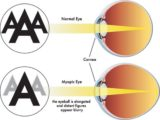 Causes Of Blurred, Shadowed Eyes, So You Can't See?