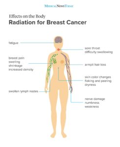 Illustration of Side Effects Of Breast Cancer Treatment?