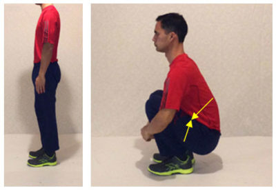 Illustration of The Lower Back Is Painful When Standing For Too Long?