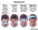 Causes Of Daily Headaches?
