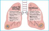 Can Tuberculosis Be Cured?