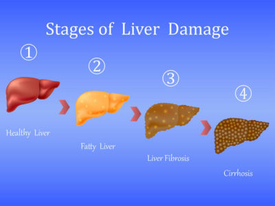 Illustration of Can Cirrhosis Of The Liver Heal?