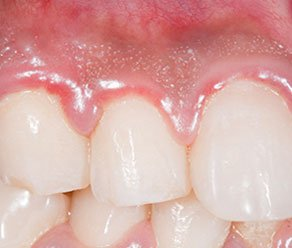 Illustration of Swollen Gums Spread Under The Tongue Due To Cavities?