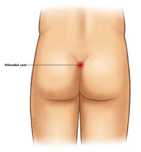 Illustration of Lump In The Buttocks Area For 1 Year But Not Painful?